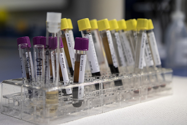 Blood test can help with diagnosing digestive disorders.